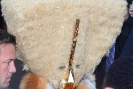 Lady Gaga la nueva mujer peluda